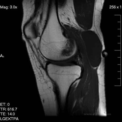Bakers Cyst M71