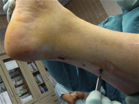 Spastic Foot and Ankle Deformities - Foot and Ankle Clinics