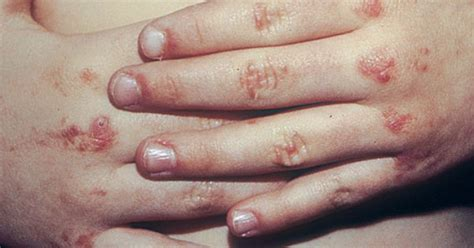 Scalp Psoriasis | Skin Problems and Treatments | Pinterest