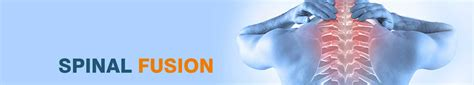 Spinal Fusion Surgery in India - Decompression – Arthroplasty