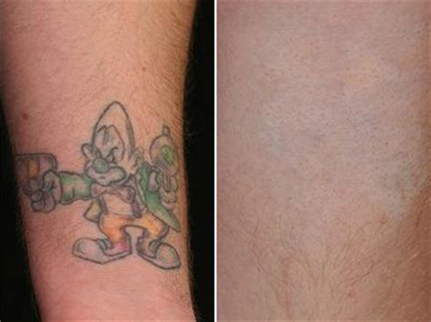 Tattoo Removal in Worcester and Stoneham, MA