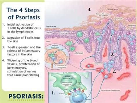 100 best Psoriasis Infographic images on Pinterest