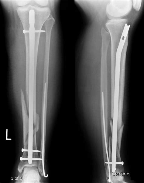 Imaging Guide to Orthopedic Devices: an introduction