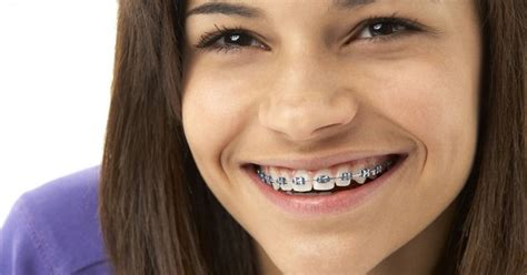 Braces – Straighter Teeth For A Wider Smile – Dr Smile