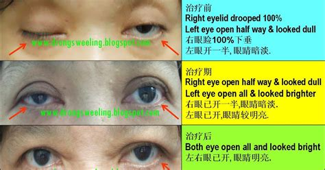 TCM News: Acupuncture Cure Drooping Eyelids 眼睑下垂
